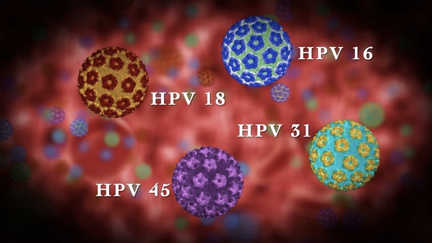 HPV-ΤΙ-ΕΙΝΑΙ11-1.png